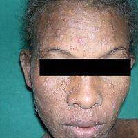 Molluscum contagiosum: extensiver Befalldes Gesichts bei bekannter HIV-Infektion.