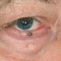Hidrozystom:seit etwa einem Jahr Ausbildung einer solitären, schwarz-blauen, kalottenförmigen, i...
