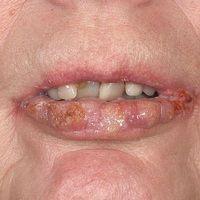 Lichen (planus) verrucosus: Detailaufnahme mit verrukösen Plaques an den Lippen.