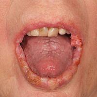 Lichen planusmucosae mit verruköser Umwandlung der Läsionen an Lippen und Mundschleimhaut.