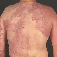 Klippel-Trénaunay-Syndrom:ausgedehnte vaskuläre Malformation mit großflächigem, den Stamm und be...