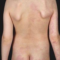 Naevus flammeus: angeborener, asymmetrisch angelegter, nicht-syndromaler (keine Gewebehypertroph...