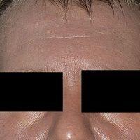 Hyperpigmentierung: flächige, gleichmäßige Hyperpigmentierung bei metastasiertem malignem Melanom.