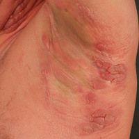 Mycosis fungoides: forttgeschrittenes Tumorstadium mit aggregierten roten Plaques und Knoten in d...
