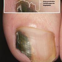 DD: Melanom malignes akrolentiginöses:hier: komplizierendeOnychomykose mit Einblutungen durch S...