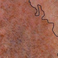 Melanodermatitis toxica: Detailabbildung mit der oberen bizarren Abgrenzungslinie zur nicht betro...
