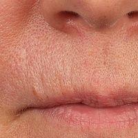 Melkersson-Rosenthal-Syndrom:Detailabbildung nach 2-jähriger Dauertherapie