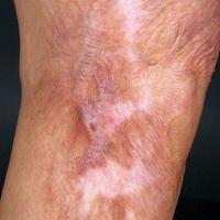 Narbe atrophische: ältere großflächige Narbe mit fibrotischen Narbensträngen.