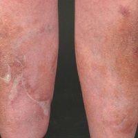 Narbe atrophische: flächenhafte Atrophie der Haut nach langjährigem Gebrauch von systemischen Glu...