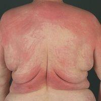 Dermatomyositis.Rot-violettes, unscharf begrenztes, juckendes, flächiges Erythem am Rücken (auc...