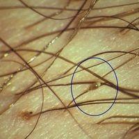 Filzlausbefall. An einem Haar festgeklebte Nisse einer Filzlaus. Abb. ausEiko E. Petersen,Farba...