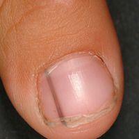 Melanonychia striata longitudinalis. Ausgangsbefund im Jahre 2006. Völlig symptomlose longitudina...