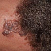 Melanom, malignes, noduläres (naevogenes malignes Melanom) auf dem Boden eines angeborenen melano...
