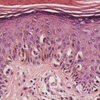Melanom, malignes, superfiziell spreitendes. Randbereich des Tumors: Pagetoide Durchsetzung der u...