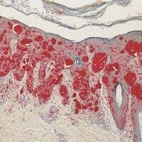 Melanom, malignes, superfiziell spreitendes. Immunhistologie (MART): Diffuse Durchsetzung von Obe...