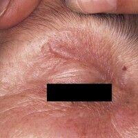 Mondor-Krankheit. Strangförmige oberflächliche Phlebitis (Mondor) am Oberlid.