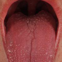 Mononuleose, infektiöse. Generalisiertes (nahezu universelles)makulöses Exanthem. Himbeerzunge m...