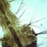 Mücken. Körper einer Aedes Larve. Am Körper befinden sich die paarig angeordneten Palmhaare.