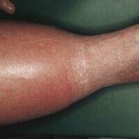 Münchhausen-Syndrom. Artefaktödem am Unterschenkel durch massive Bindenkomprimierung des Fußes bi...