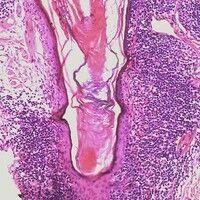 Mycosis fungoides. Ausgeprägte Follikel-bezogene  Epitheliotropie bei Mycosis fungoides. Follikel...