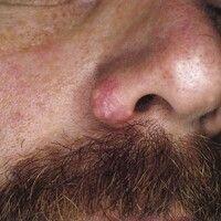 Myxom, kutanes. Hautfarbene Knötchen mit umgebender Rötung am Nasenflügel eines 36-jährigen Patie...
