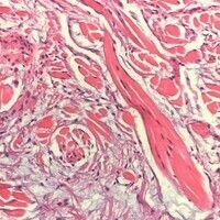 Myxom, kutanes. Detailausschnitt: Das präexistente Bindegewebe (eosinophile Stränge) wird durch e...