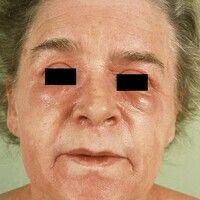 Mixed connective tissue disease. Schwellungenn und diffuse Rötungen der Lider, periorale Blässe; ...