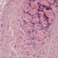 Molluscum contagiosum: straßenförmig angeordnete Molluskumkörperchen, die in den suprabasalen Ker...