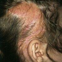 Naevus sebaceus. Seit Geburt bestehende, haarlose Plaque im Bereich des Kapillitiums eines 14-jäh...