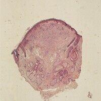 Gewöhnlicher melanozytärer Naevus. Dermaler Typ. Knotige Neubildung mit diffuser Ausbreitung der ...