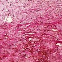 Blauer Naevus. Geringgradige unregelmäßige Akanthose. Ungeordnete spindelige Melanozyten zwischen...
