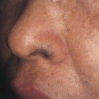 Naevus fuscocoeruleus ophthalmomaxillaris. Schwarzbläulicher Fleck am Nasenflügel einer 37-jährig...