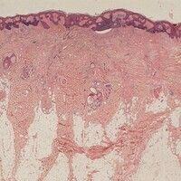 Naevus sebaceus. Netzig-akanthotisches Oberflächenepithel. Multizentrische Entwicklung eines Basa...