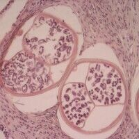 Onchozerkose. Onchocerca volvulus. Mehrere Querschnitte durch den adulten weiblichen Wurm. Die di...