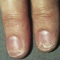 Onychoschisis. Vertikale Aufsplitterung der Nagelplatte von distal bei zu häufigem Wasserkontakt ...