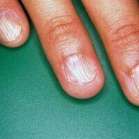 Onychorrhexis. Längsfaserige Aufsplitterung der Fingernägel bei gleichzeitiger Atrophie der Nagel...
