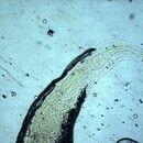 Oxyuriasis. Schwanz eines Enterobius vermicularis-Weibchens. Typisch ist das extrem zugespitzte H...