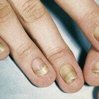 Pachyonychia congenita. Alle Finger- und Zehennägel betreffende, angeborene Nageldystrophie mit P...