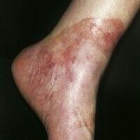 Necrobiosis lipoidica. Chronische, scharf begrenzte, flächige, zentral atrophische, glatte Plaque...
