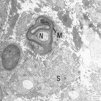 Neurofibromatose. Elektronenmikroskopie: Markhaltiger (M) Nerv (N) in Schwannscher Zelle (S).