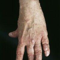 TypI Neurofibromatose, peripherer Typ oder klassische kutane Form. Permanente, multiple, hautfar...