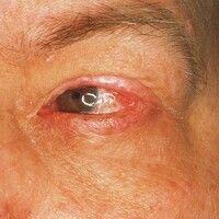 Pemphigoid, vernarbendes. Befall der Konjunktiven mit Synechien und Entropium des Oberlides.