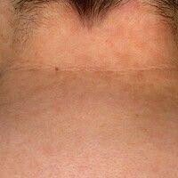 Papillomatosis confluens et reticularis. Konfluierende, bräunlich hyperpigmentierte, seit mehrere...