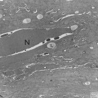 Parakeratose. Elektronenmikroskopie: Detailvergrößerung: Nucleus (N), Kern, im Str. corneum mit e...