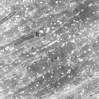 Parakeratose. Elektronenmikroskopie: Zahlreiche Kerne, Nuclei (N) im Str. corneum durchsetzt von ...
