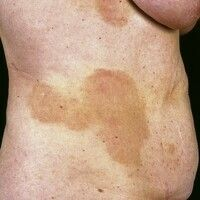 Parapsoriasis en plaques, großherdig Form (Parapsoriasis en grandes plaques): vollständig symptom...