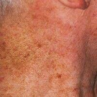 Pechhaut. Unregelmäßige Pigmentierungen, flächige aktinische Elastose im Bereich des Halses.