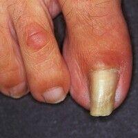 Pincer-nail: röhrenförmige Querverbiegung des Großzehennagels mit Einschneiden in das Nagelbett. ...