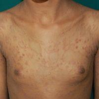 Pityriasis rosea: Wenige Wochen bestehendes makulo-papulösesbis plaqueförmiges, gering bis mäßig...