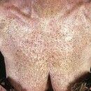 Poikilodermie, aktinische. Durch vermehrte Pigmentbildung bräunlich tingierte aktinische Keratose...
